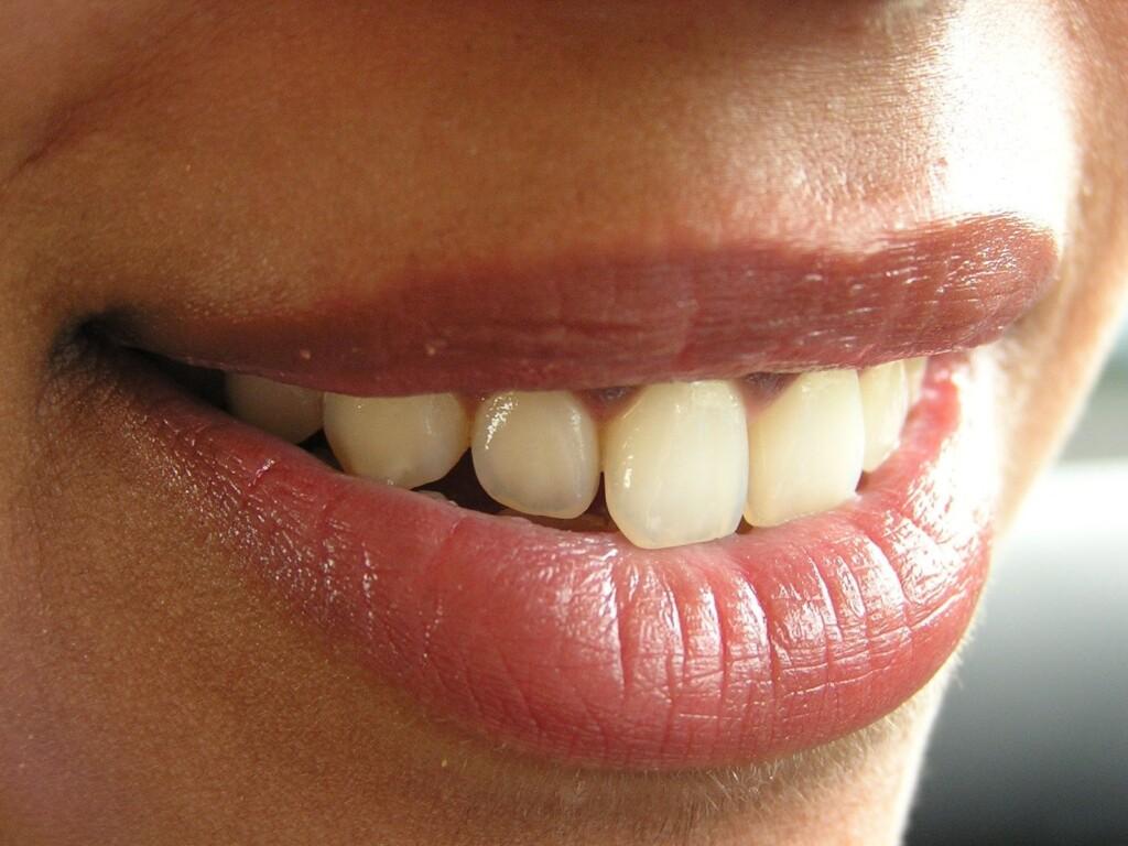 Hangende mondhoeken